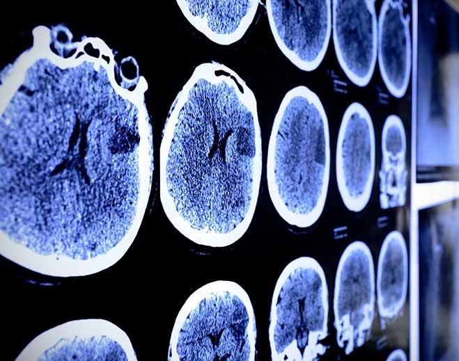 Brain-659-x-519-min